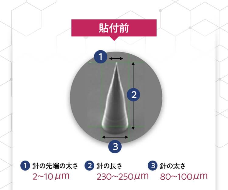 円錐型の3Dマイクロフィラーは浸透率80%